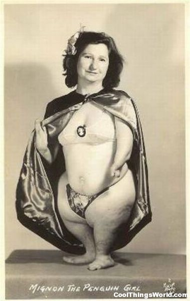 Ruth Davis, the penguin girl had seal limbs a disease called phocomelia. It is what gave her the penguin appearance.